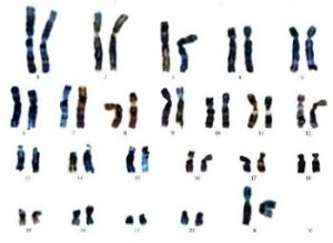Le caryotype d'une femme (XX)